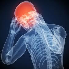 Skeleton Headache