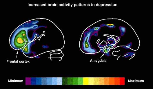 Heat map of brain activity, normal state versus depressed state